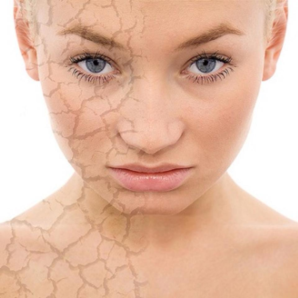Dry Skin - 6 Ways to Treat It!