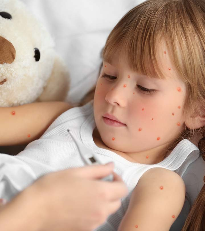 Chickenpox Marks - 5 Ways to Treat Them!