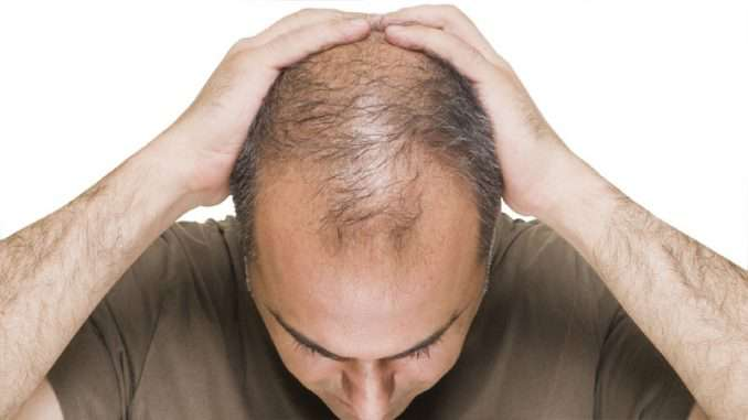 Ayurveda - How It Can Treat Hair Loss?