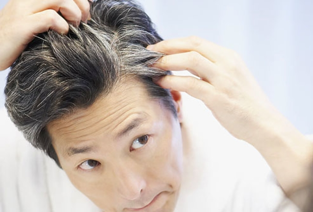 Greying Of Hair - 4 Remedies To Prevent It!