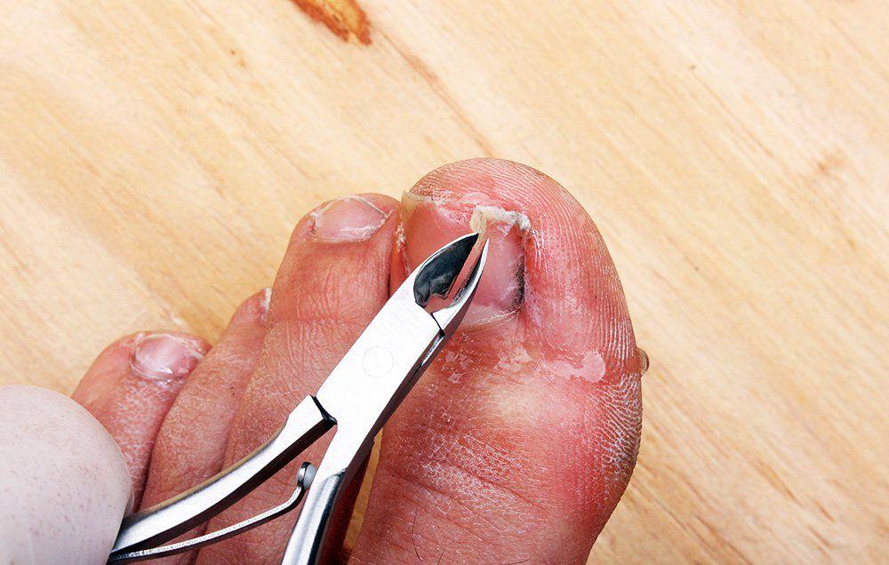 पायाच्या अंगठ्यातील नखांचा संसर्ग टाळण्यासाठी हे उपाय करून पहा: