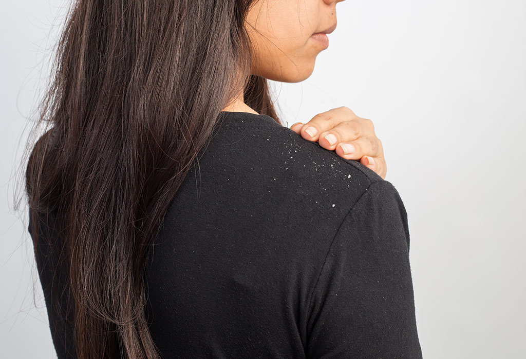 Dandruff - 8 Ways To Manage It!