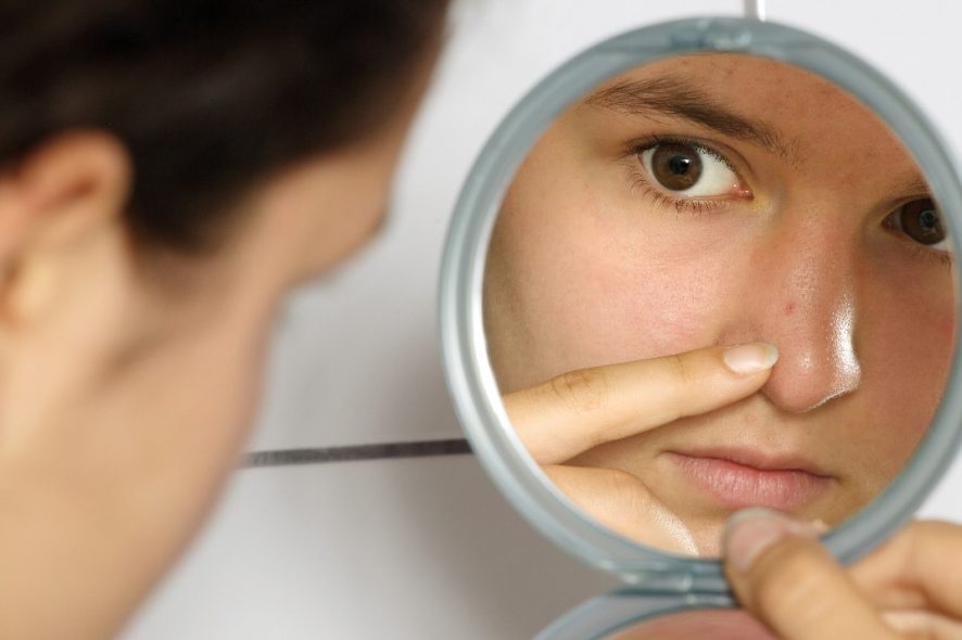 How To Remove Blackheads? Try This Wonder Scrub Made Using Kitchen Ingredients