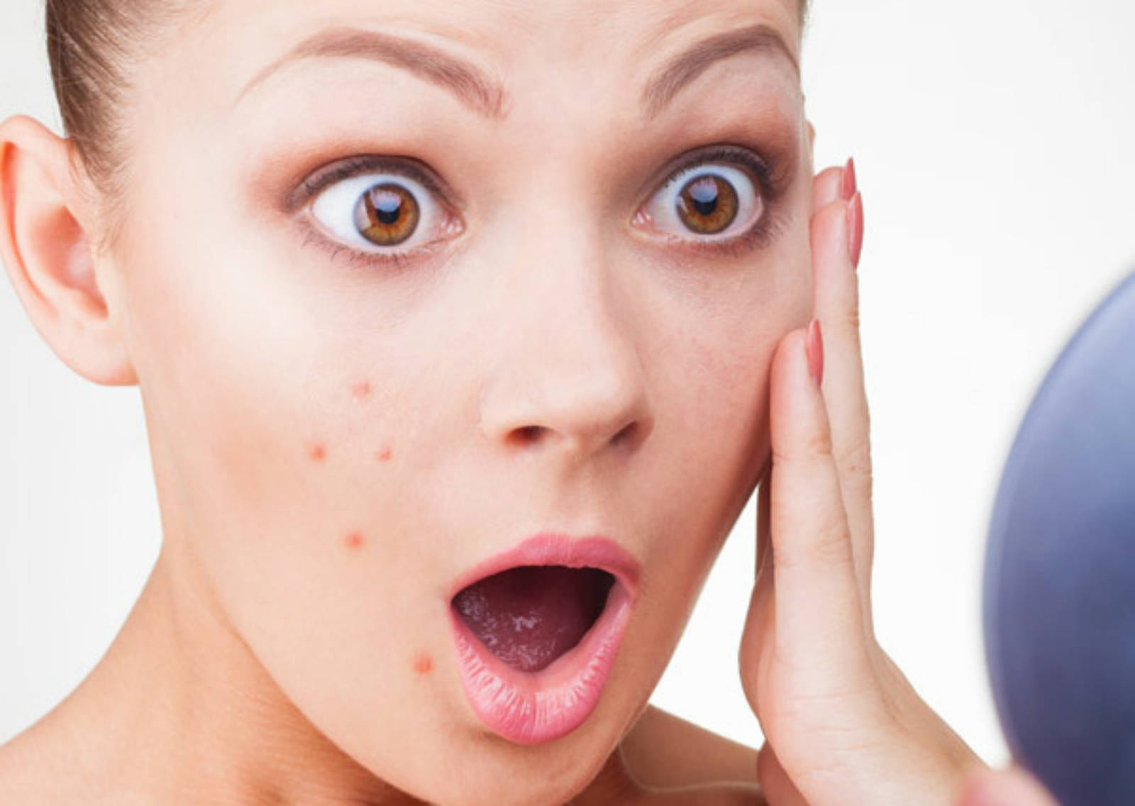 Pimple Problem? Bring This Two-Ingredient Face Pack To Your Rescue