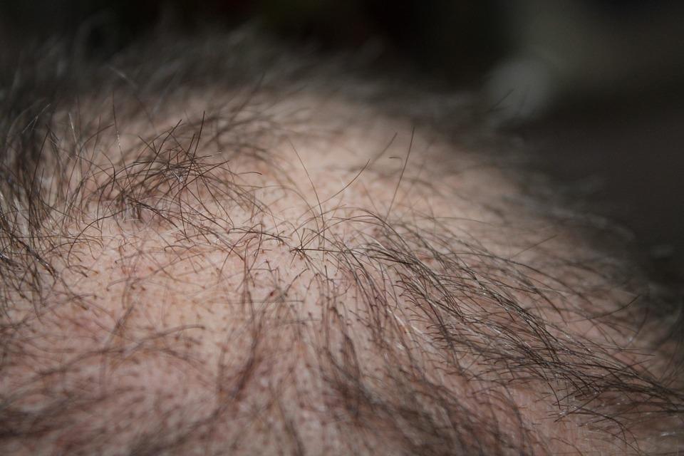 केसगळतीचा त्रास कमी करून पुन्हा मजबूत केस उगवायला मदत करेल पुदीन्याचे तेल