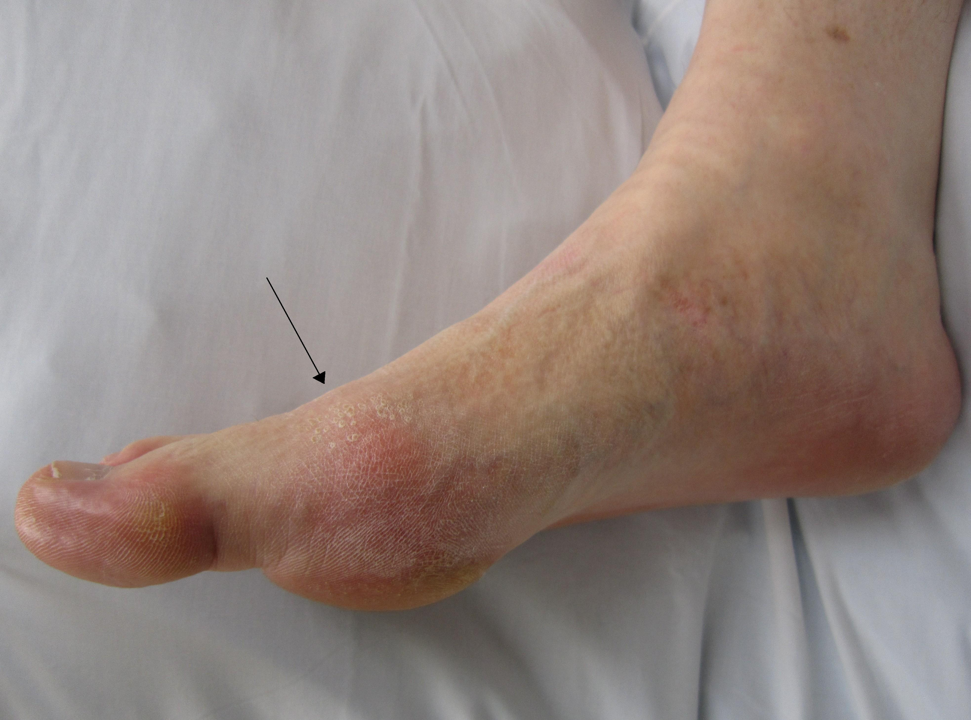 Gout, the painful condition doesn't increase your risk of fracture