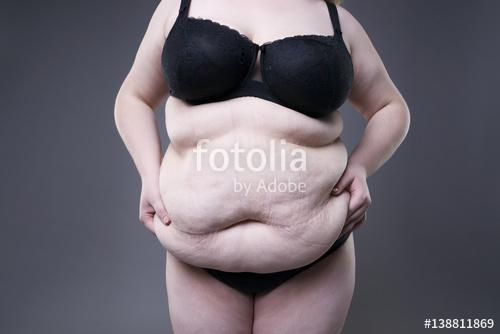 लठ्ठ महिलांना 'या' गंभीर आजाराचा धोका !