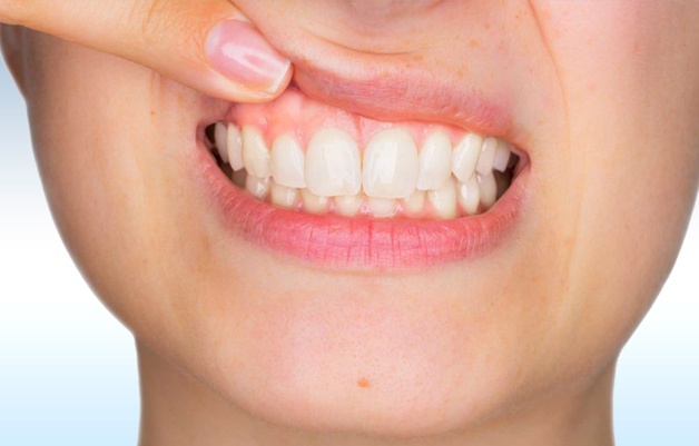 What to do to keep gums healthy