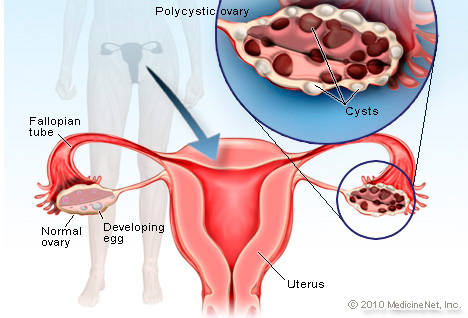 Is PCOS curable with homeopathic medicines?